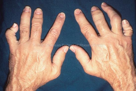 Psoriatic Arthritis: Hands