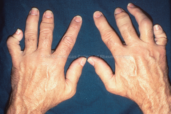 Psoriatic Arthritis: Hands